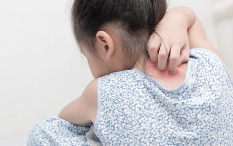 Eczema: The Itch that Rashes