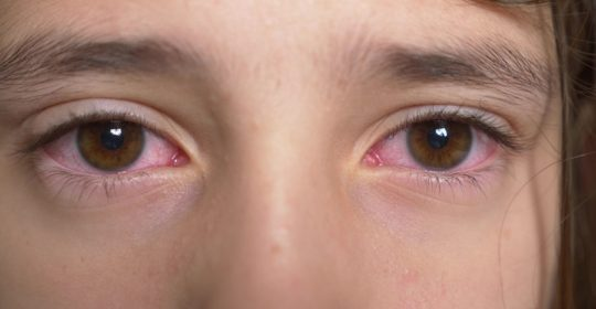 Not all red eyes are 'Pink Eye'