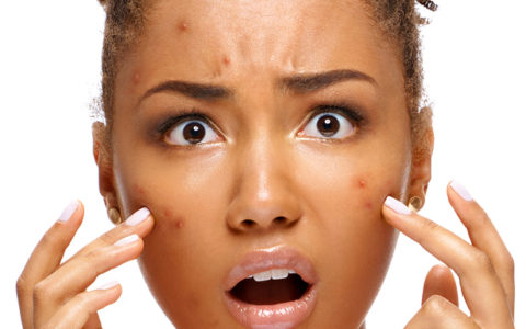 Acne Basics for Teens